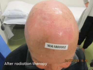 After radiation therapy
